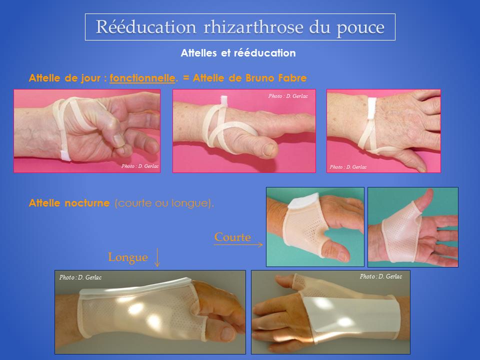 kine-kinesitherapeute-main-attelle-specialiste-rhizarthrose-grenoble