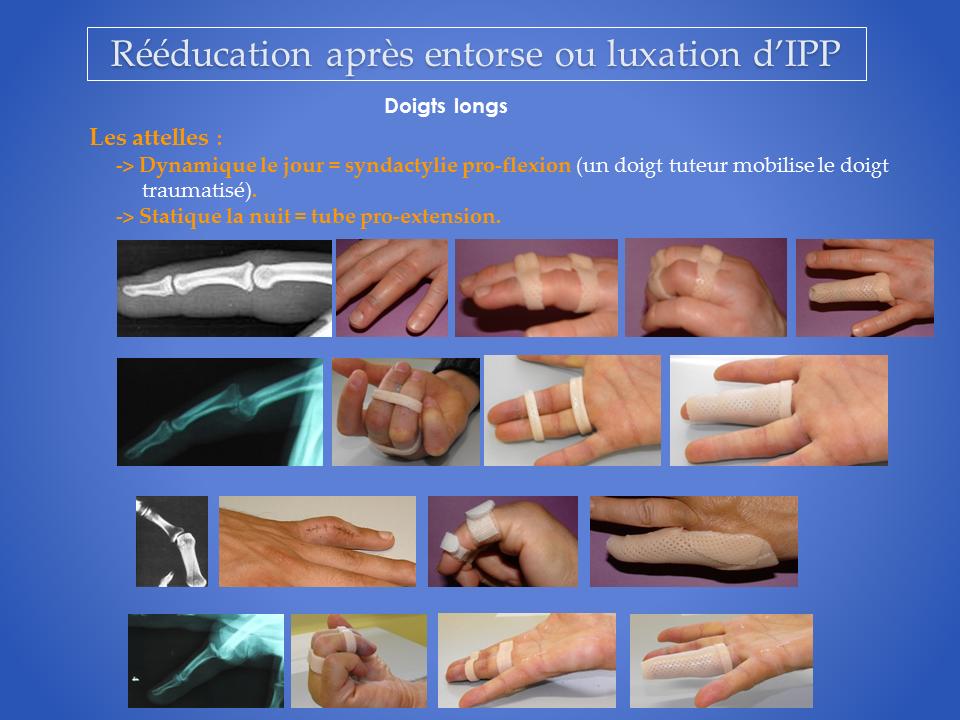 Rééducation après luxation de doigt (IPP) - Denis GERLAC ...