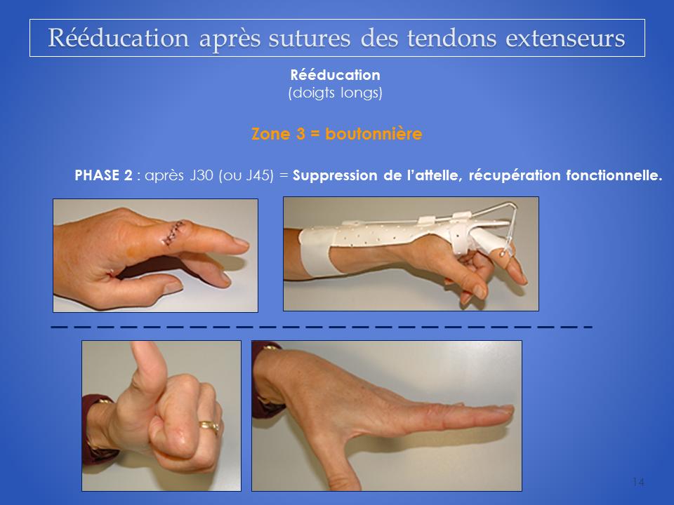 kine-main-grenoble-kinesitherapeute-reeducation-tendon-14