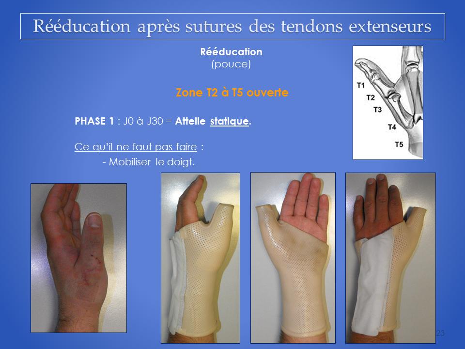 kine-main-grenoble-kinesitherapeute-reeducation-tendon-23