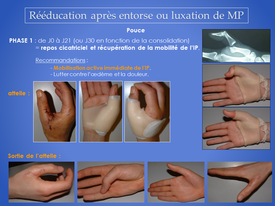 kine-main-grenoble-reeducation-kinesitherapie-4