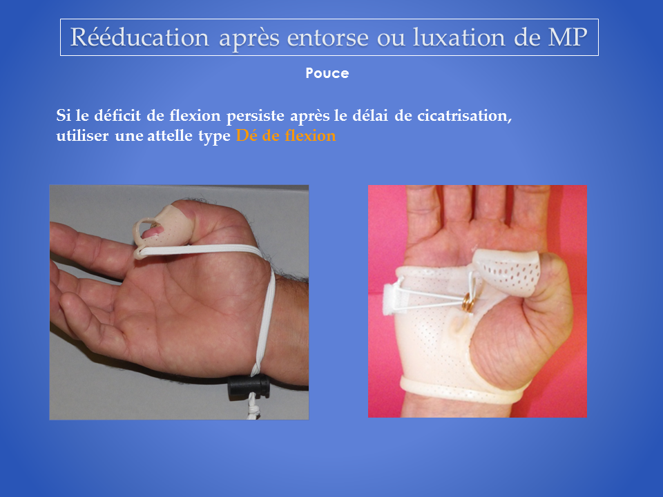kine-main-grenoble-reeducation-kinesitherapie-7