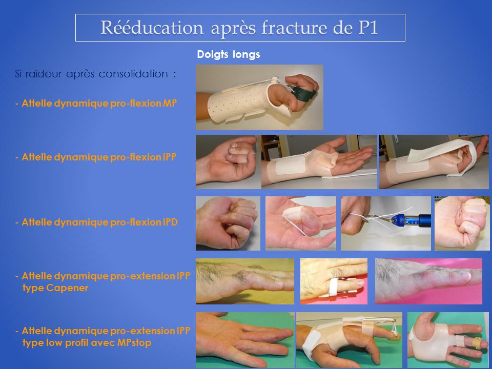 kinesitherapeute-main-grenoble-reeducation-14