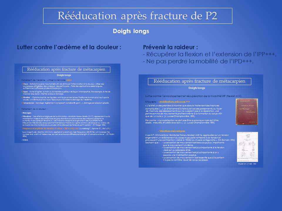 kinesitherapeute-main-grenoble-reeducation-20