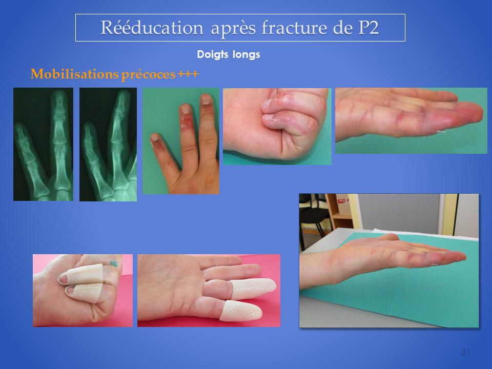kinesitherapeute-main-grenoble-reeducation-21