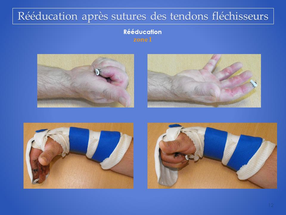 kinesitherapeute-main-grenoble-reeducation-flechisseur-12
