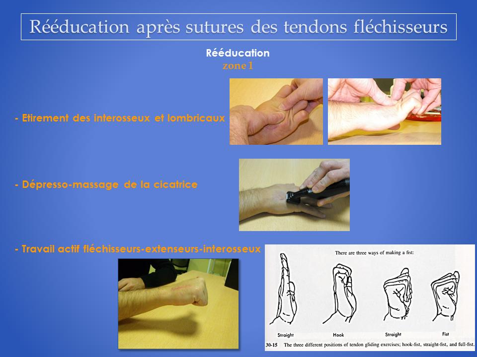 kinesitherapeute-main-grenoble-reeducation-flechisseur-15