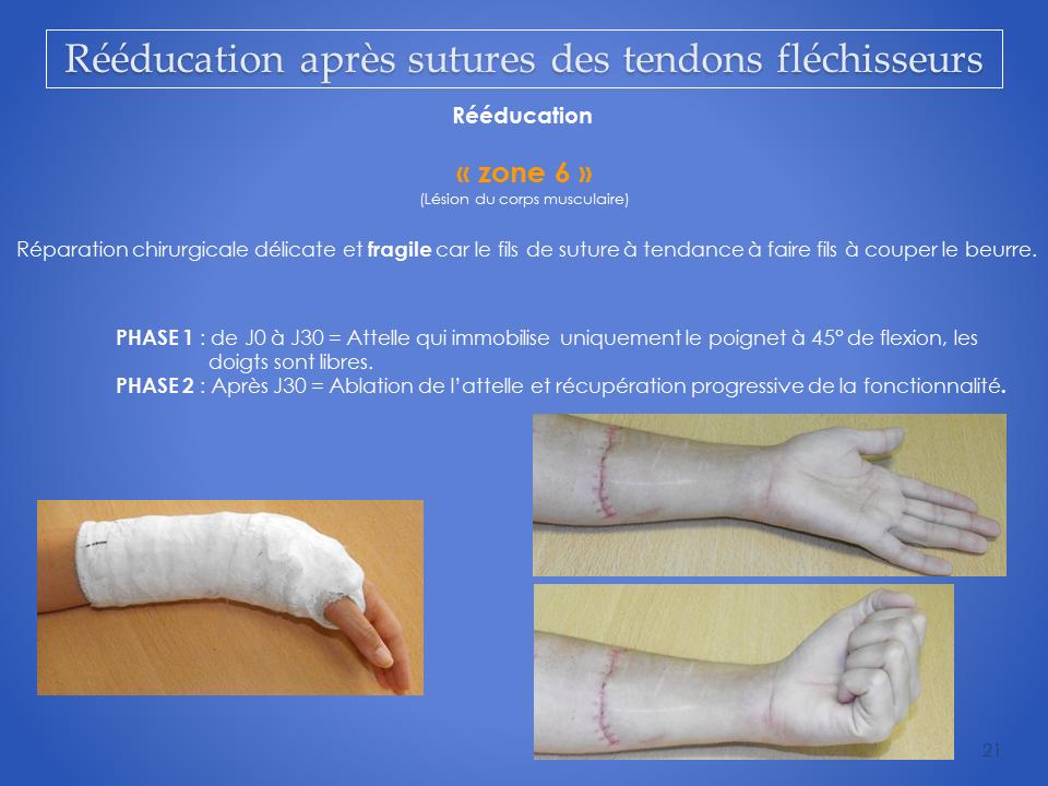 kinesitherapeute-main-grenoble-reeducation-flechisseur-21
