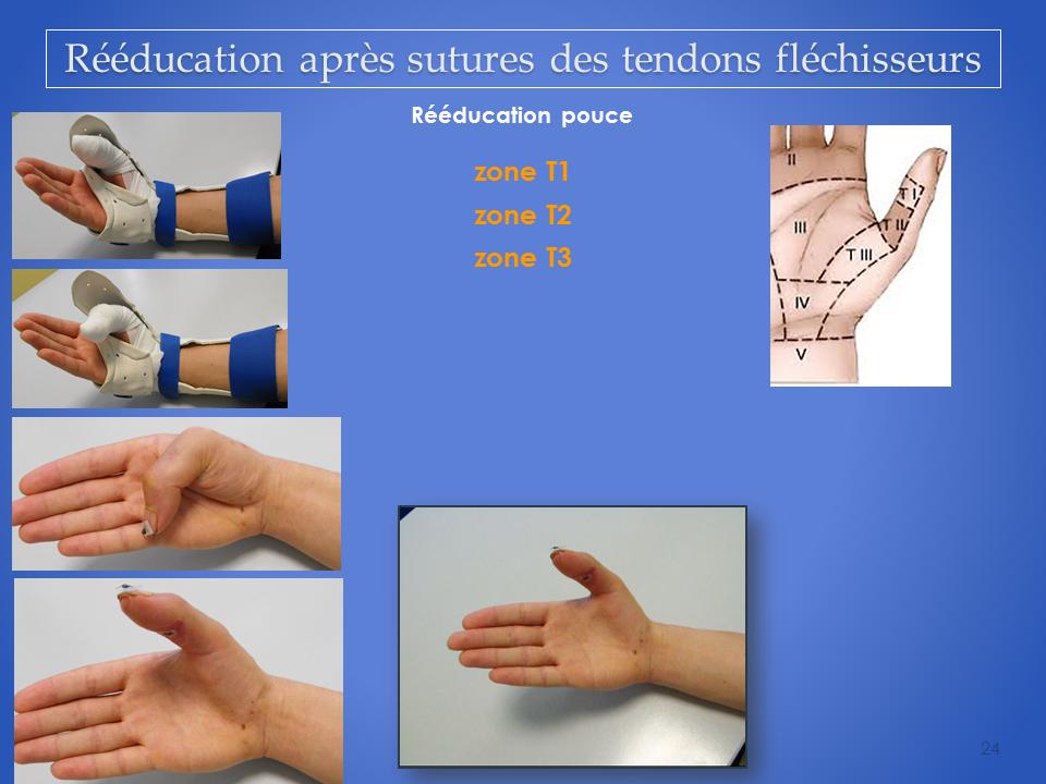 kinesitherapeute-main-grenoble-reeducation-flechisseur-24