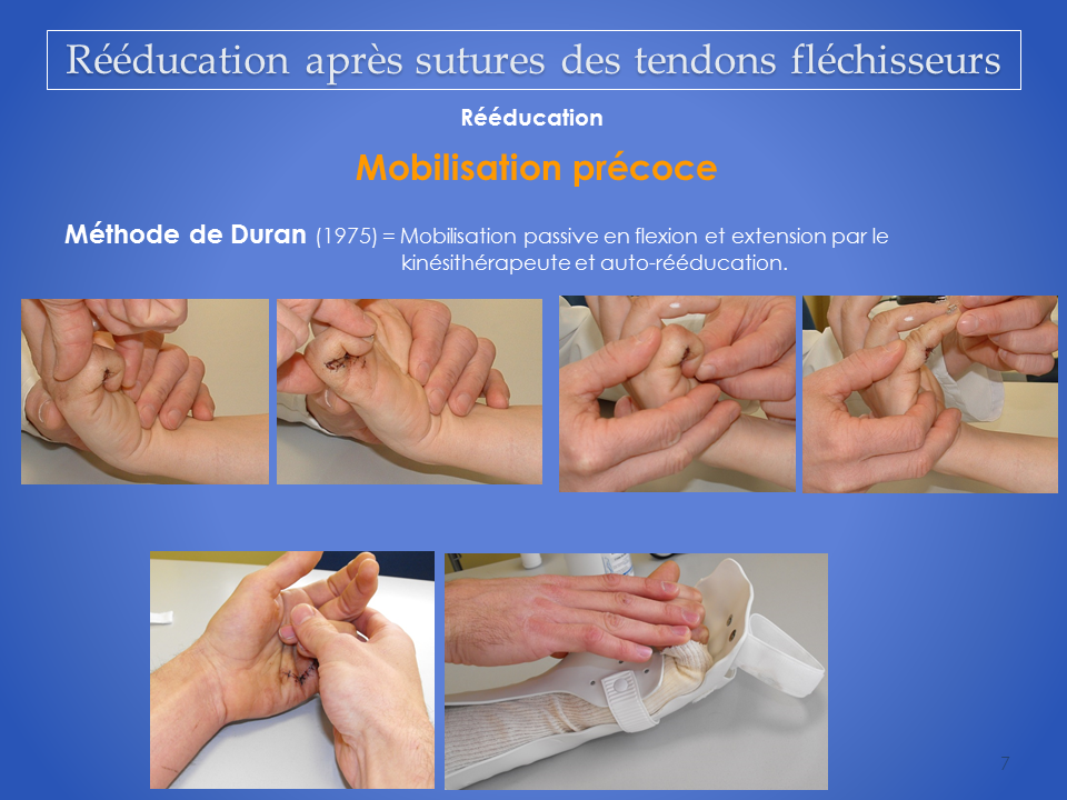 kinesitherapeute-main-grenoble-reeducation-flechisseur-7
