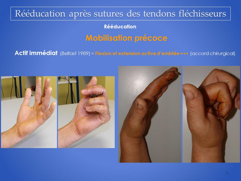 kinesitherapeute-main-grenoble-reeducation-flechisseur-8