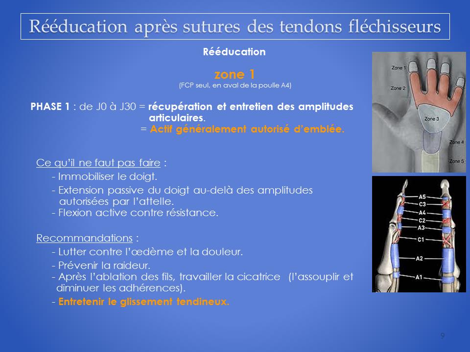 kinesitherapeute-main-grenoble-reeducation-flechisseur-9