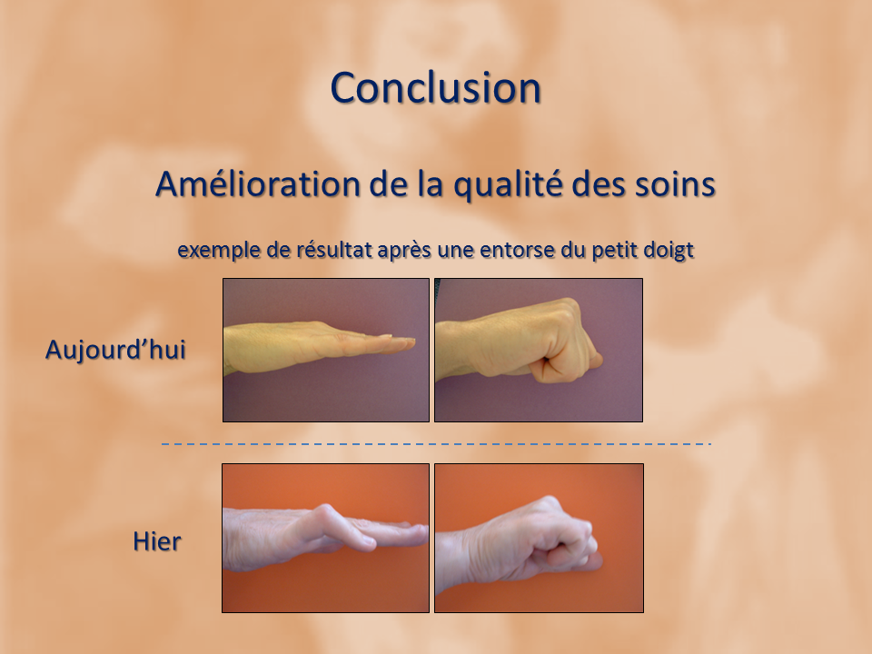 kinesitherapeute-main-grenoble-reeducation-fracture-gerlac-18