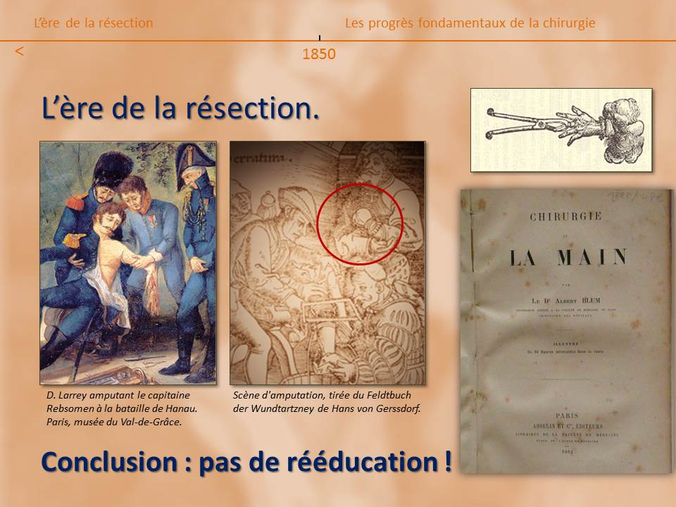 kinesitherapeute-main-grenoble-reeducation-fracture-gerlac-4