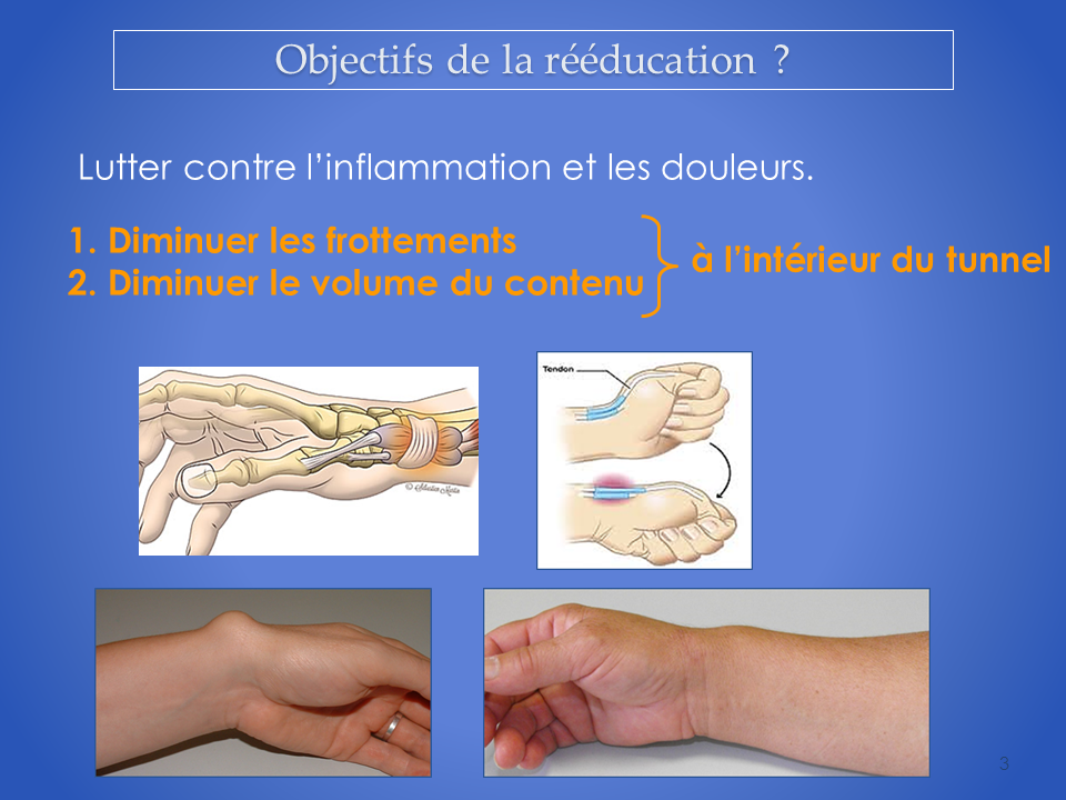 kinesitherapie-main-reeducation-grenoble-3