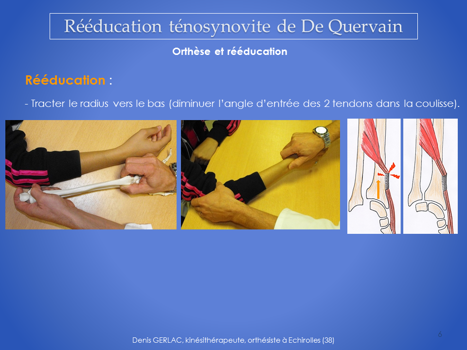 kinesitherapie-main-reeducation-grenoble-6