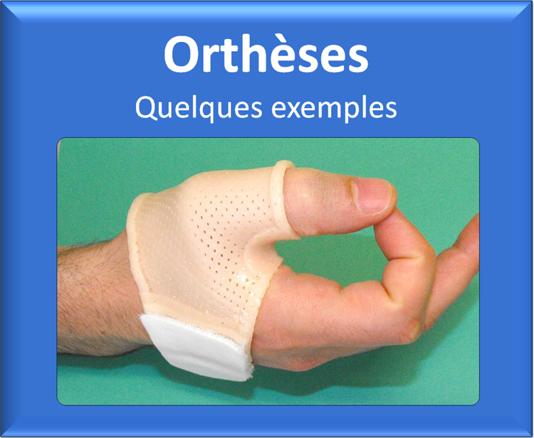 kine-kinesitherapie-main-grenoble-echirolles-attelle-reeducation