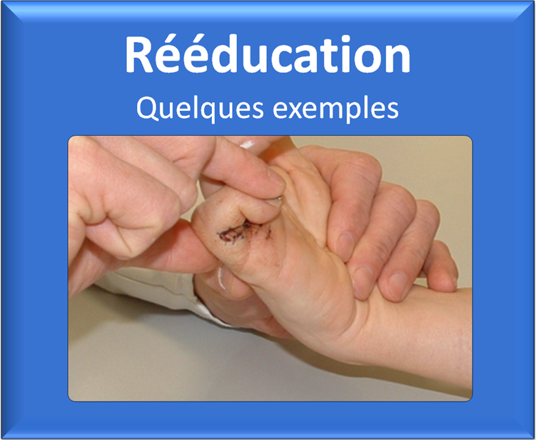 kine-kinesitherapie-main-reeducation-attelle-grenoble-echirolles