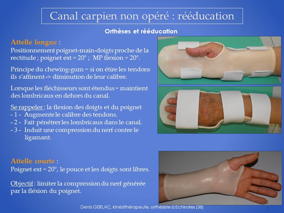 kinesitherapeute-main-grenoble-kine-canal-carpien-5