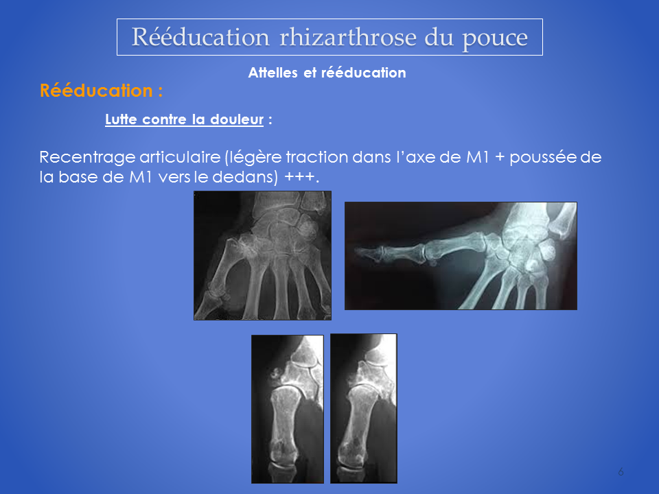 kinesitherapeute-main-reeducation-grenoble-6