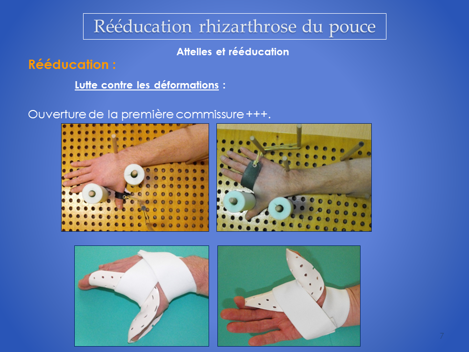 kinesitherapeute-main-reeducation-grenoble-7