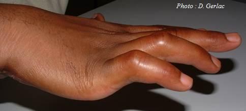 orthese-paralysie-main-grenoble-echirolles